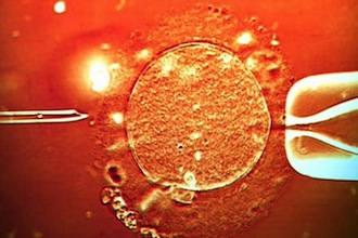 ivf-treatment-sperm-being-injected-into-human-egg-598864817-86598