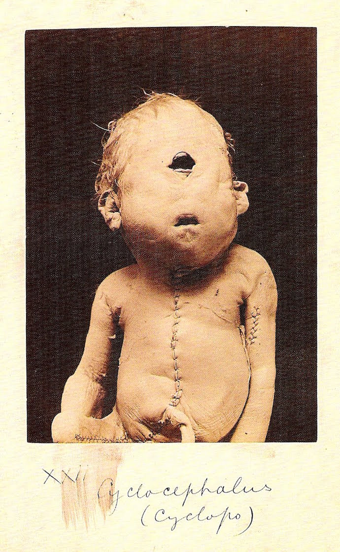 unborn-child-of-polyphemus-and-galatea